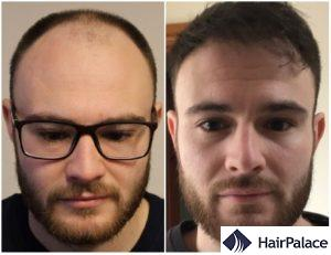hair transplant result in Andover