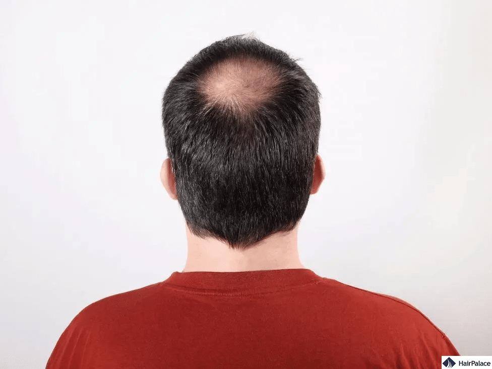 balding vertex hair