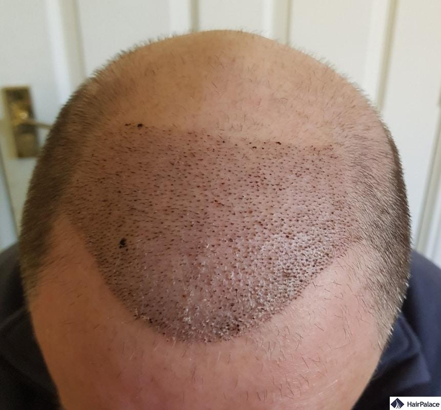 Scabs 1 week after the hair transplant