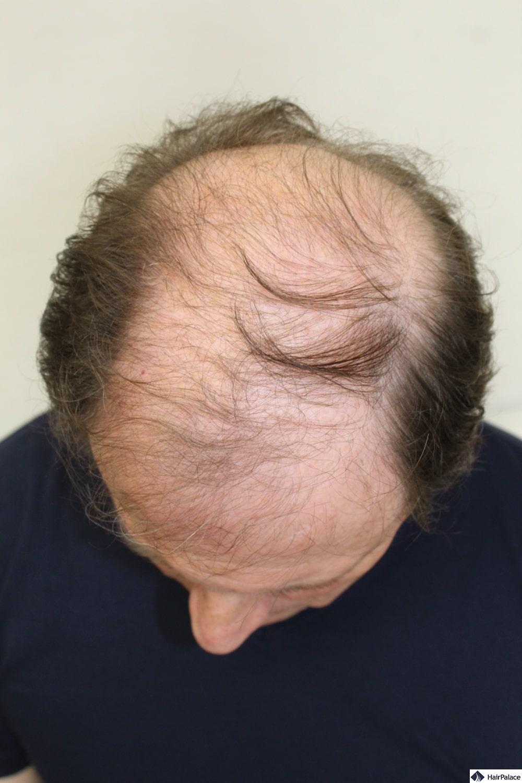 Derek baldness before hair transplant