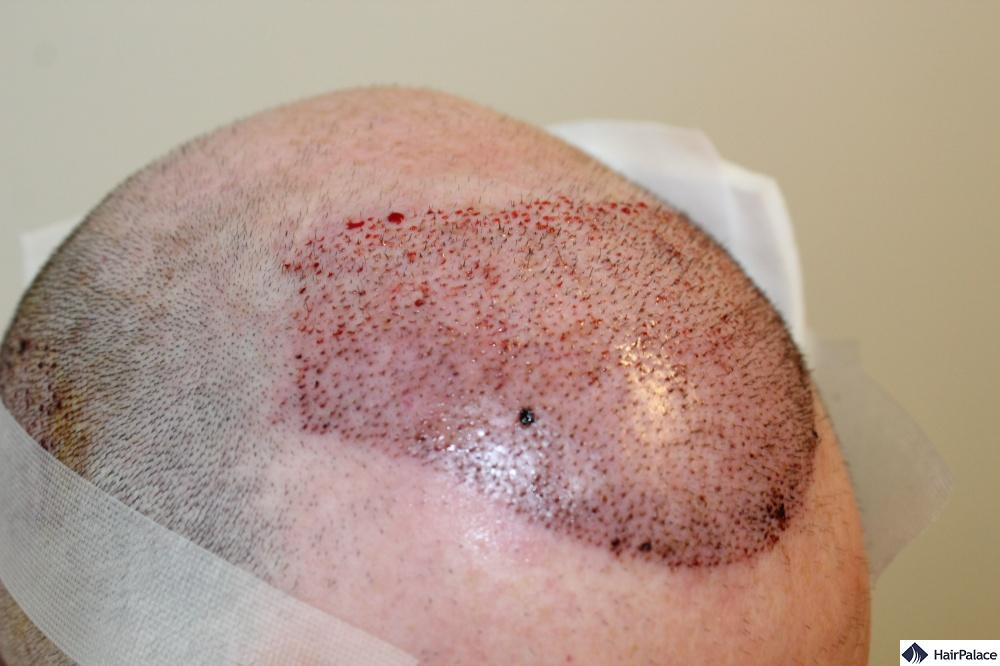 After FUE2 hair transplant surgery