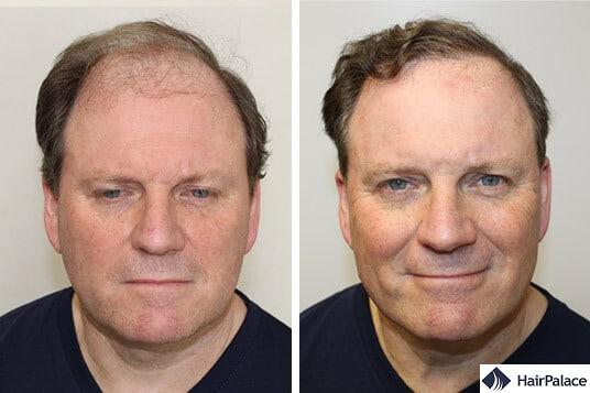 Derek before and after hair transplant