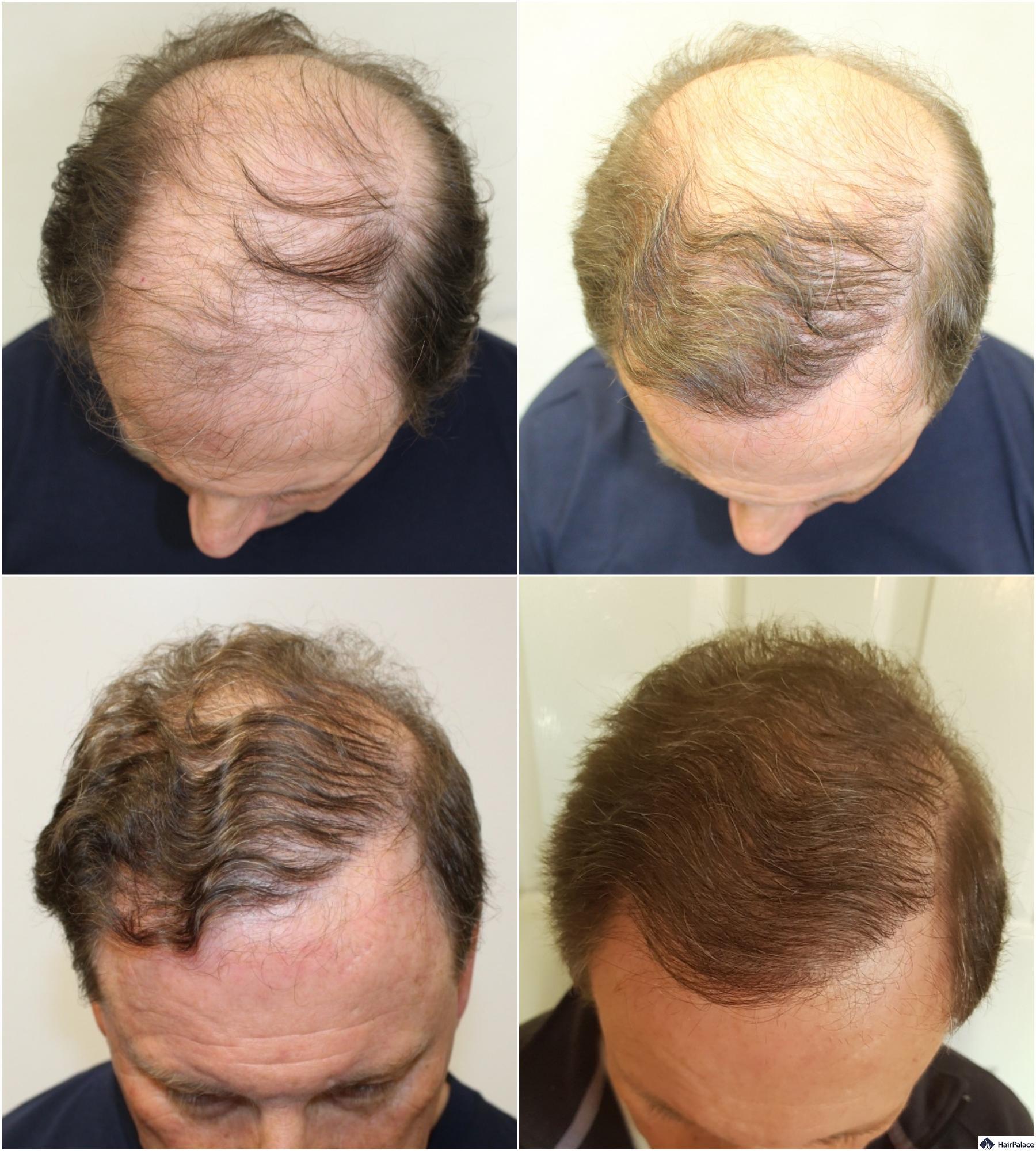 FUE hair restoration step by step
