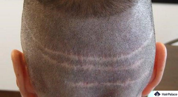 FUT hair transplant leaves a visible scar