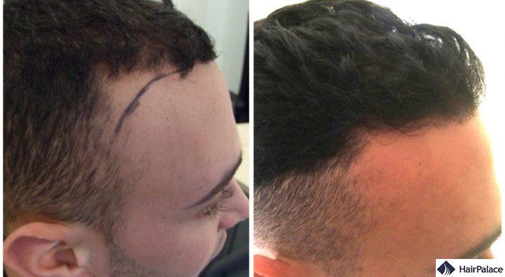 hair transplant result in Borehamwood