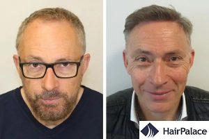 hair transplant result in Uxbridge