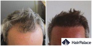 hair transplant result in Haywards Heath