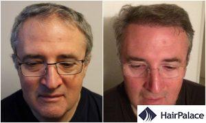 successful hair transplant result in Newbury
