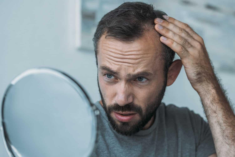 receding hairline symptom