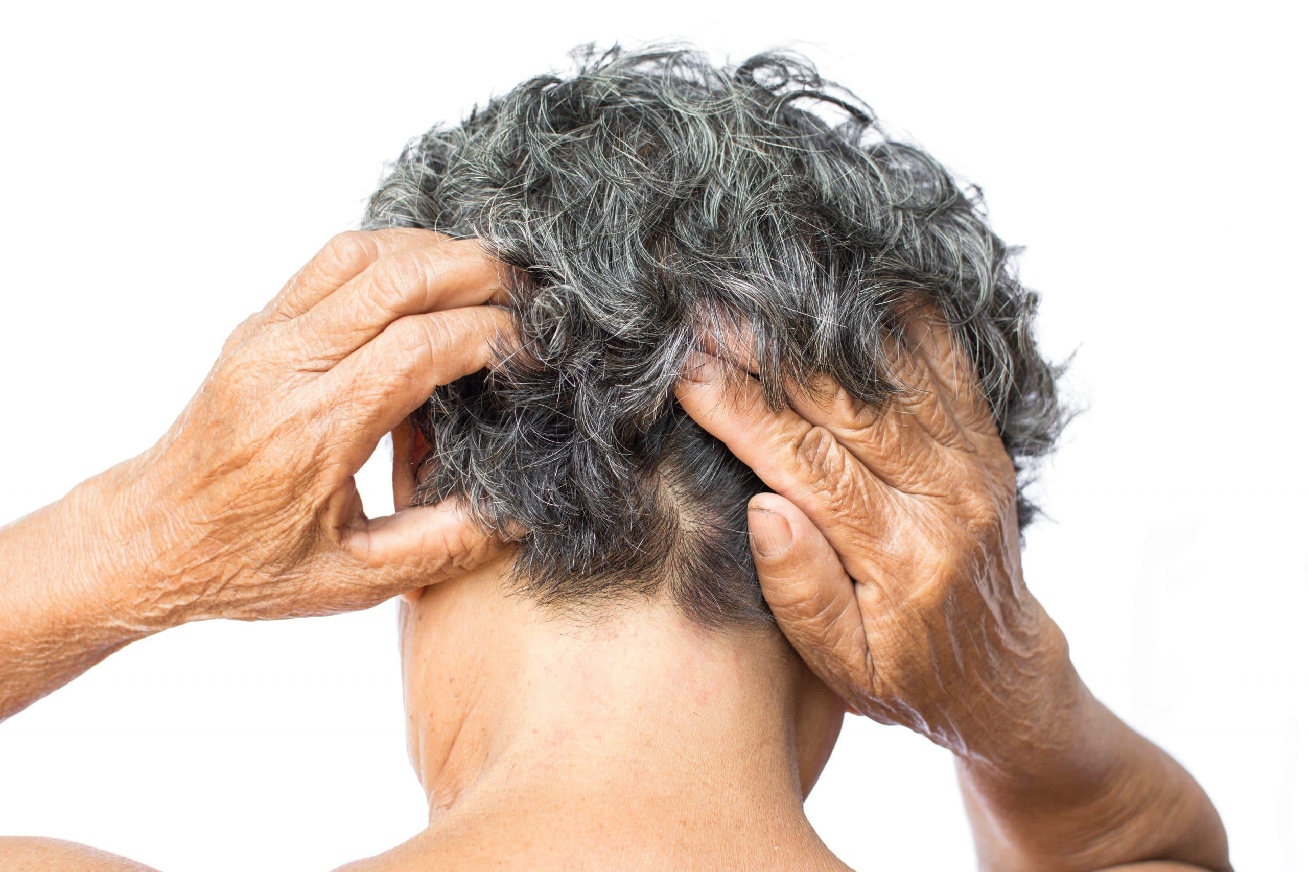 irritating scalp psoriasis