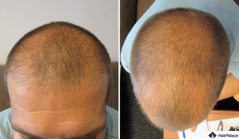 balding visible scalp