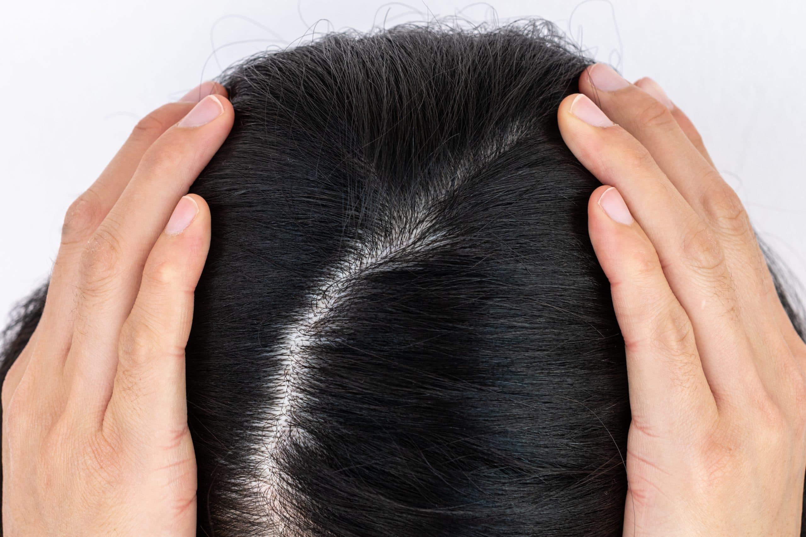 genetic hair loss widening hair