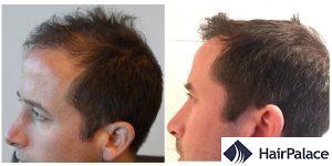 Basingstoke FUE hair transplant result