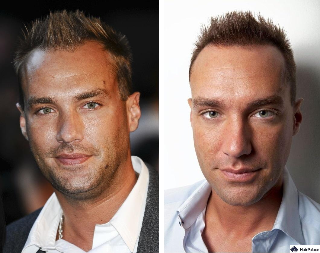 Calum Best before and after his first hair treatment