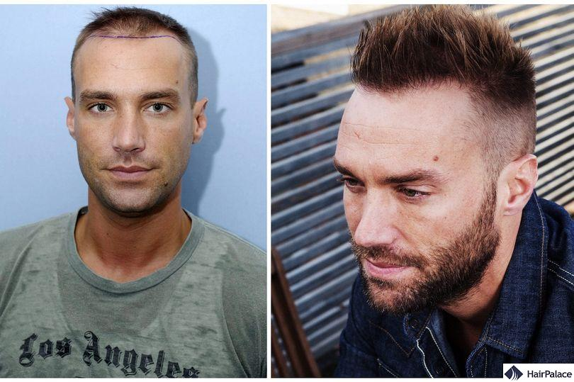 Calum Best before and after his second hair transplant
