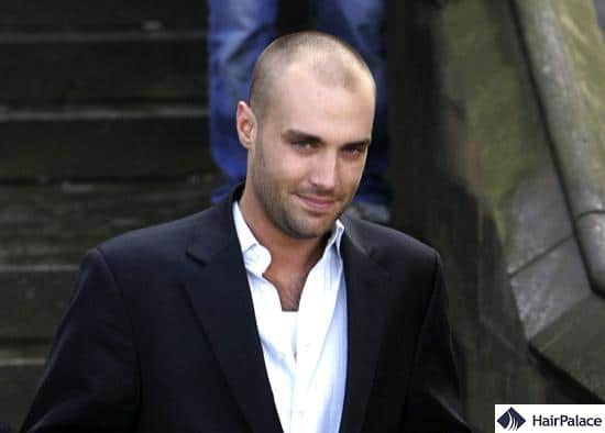 Calum Best with thinning hairline back in 2006