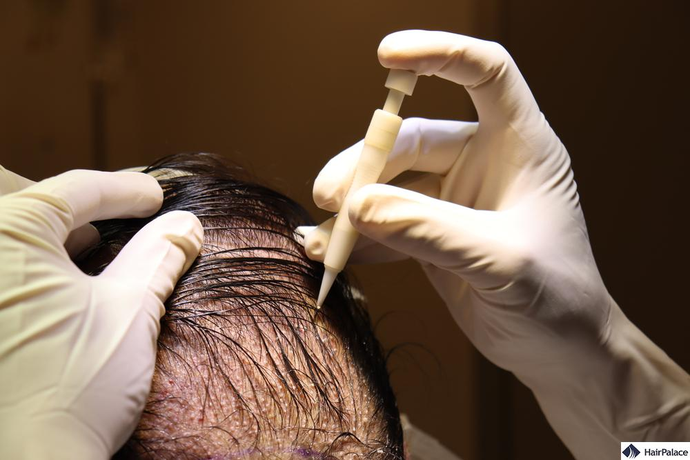 DHI hair transplant method
