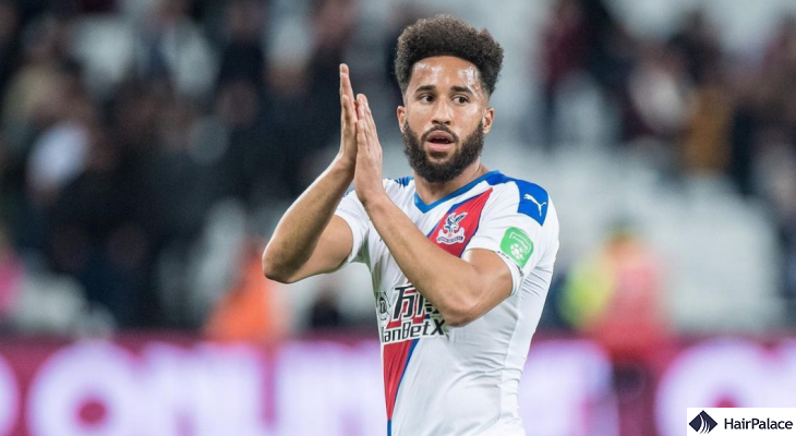 Andros Townsend possible hair restoration
