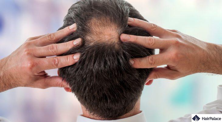 Balding ways to stop How to