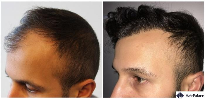 hair transplant result in Chepstow