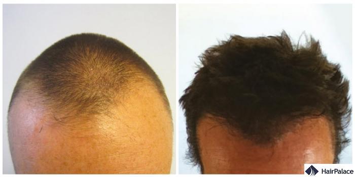 hair transplant result in crowborough