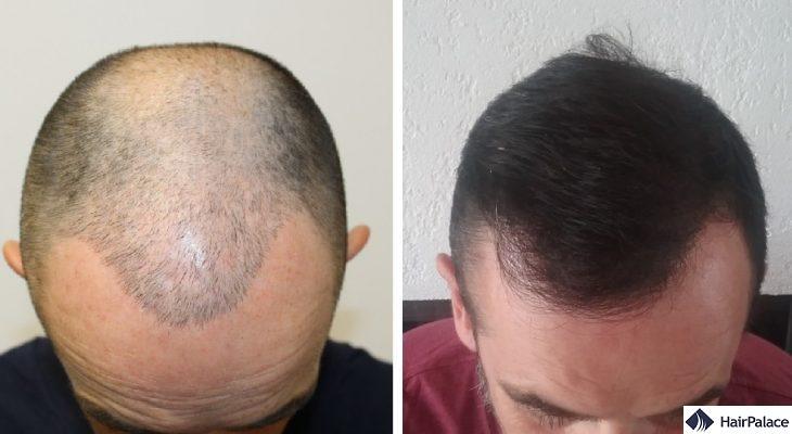 Livingston hair transplant result