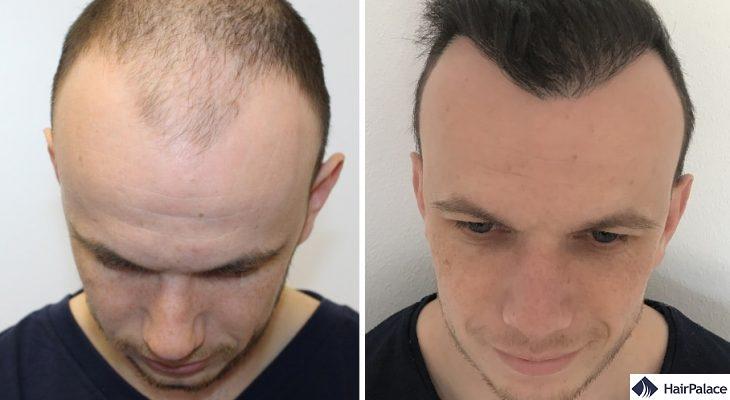 Motherwell FUE hair transplant result
