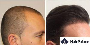 Camberley hair transplant result