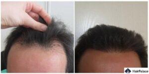 Cork FUE hair transplant result