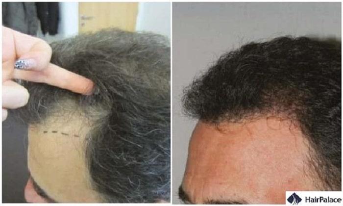limerick hair transplant result