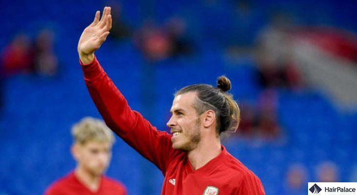 Gareth Bale hair transplant story