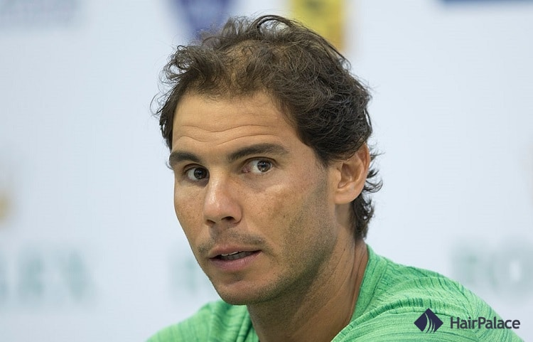 Rafael Nadal hair density