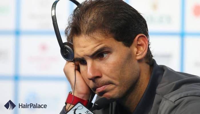 Rafael Nadal hair loss problem