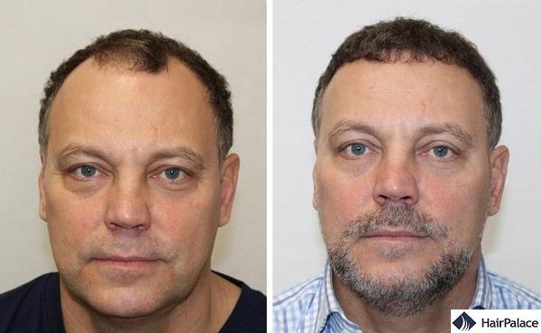 Leeds hair transplant result