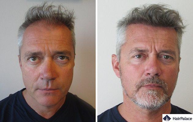 Turkey hair transplant result