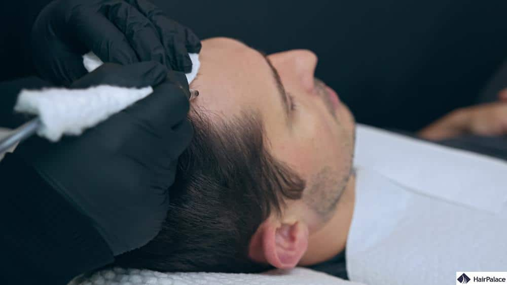 how long will scalp micropigmentation last